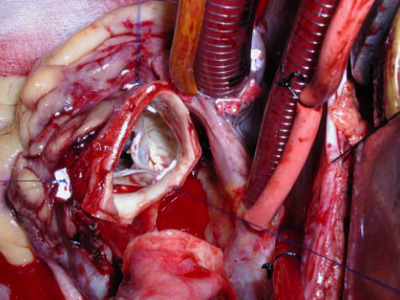 medicalschool:  Open heart surgery