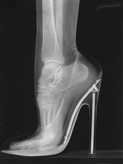 No wonder some girls end up with jacked up looking feet when they're older.