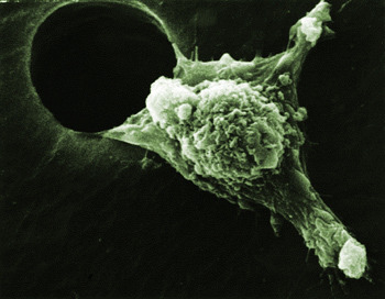 laboratoryequipment:  Proteins Key to Stopping Cancer from SpreadingCancer cells must prepare for travel before invading new tissues, but new Cornell research has found a possible way to stop these cells from ever hitting the road. Researchers have identified two key proteins that are needed to get cells moving and have uncovered a new pathway that treatments could block to immobilize mutant cells and keep cancer from spreading, says Richard Cerione, a professor of pharmacology and chemical biology at Cornell's College of Veterinary Medicine.Read more: http://www.laboratoryequipment.com/news-Proteins-Key-to-Stopping-Cancer-from-Spreading-022312.aspx