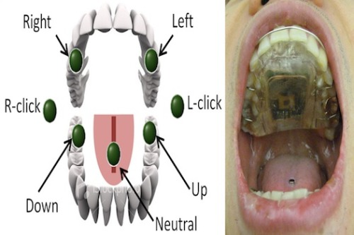 Dental Retainer Lets The Paralyzed Move Computer Cursor Amazing.  Click through to full post on PSFK