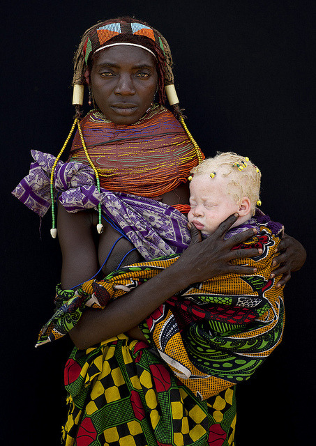 Albino Tribeswoman in her younger years…