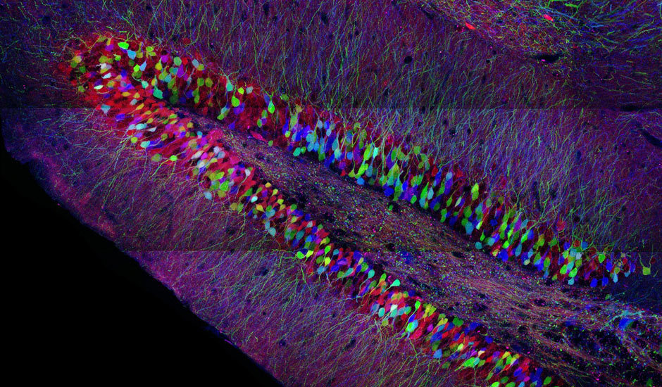 Confocal micrograph of a 'Brainbow' mouse hippocampus. By Jean Livet.