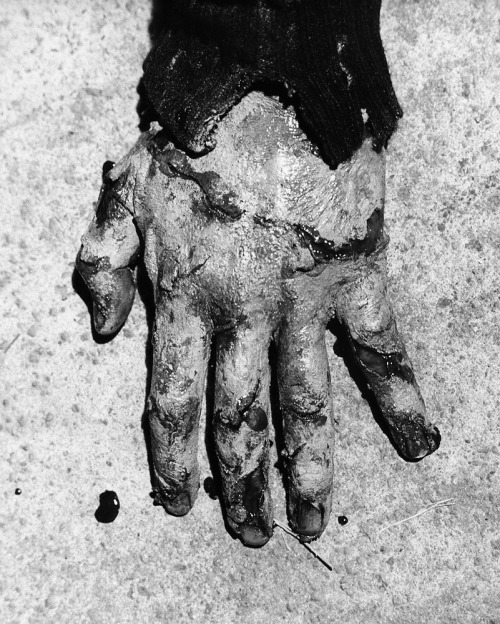 A rare close-up photo of Jason Miller's bloodied hand taken during the filming of Father Karras' last rites, highlighting the detail of Dick Smith's make-up. Photo courtesy of Dick Smith.