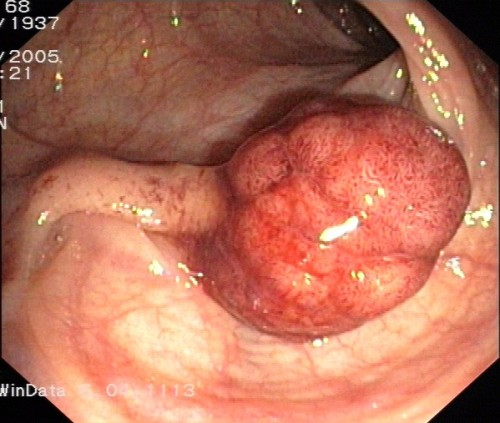 COLONOSCOPY CAN SAVE LIVES A new study in the New England Journal of Medicine is finally giving us some proof of what we've long suspected – having a colonoscopy can save your life.  The procedure involves a doctor examining the inside of your colon (a.k.a. large intestine) with a camera mounted on a long, flexible tube inserted through the rectum.  The purpose is to look for changes in the lining of the colon suggestive of cancer, especially growths called polyps that may be an early sign of cancer.  If a polyp is found the doctor can remove it during the colonoscopy procedure. Previous research has shown that colonoscopy reduces the risk of getting colon cancer because of the removal of pre-cancerous growths.  The question answered by the new research is whether removing polyps makes a difference in how long a person lives.  The answer is yes – researchers found that removing polyps during colonoscopy can reduce the risk of death from colon cancer by 50%. A major question that still remains to be answered is whether every person should have a colonoscopy at some point in their life.  The current recommendations on screening for colon cancer in the general population of people at low risk are variable, depending on who you ask.  Some U.S. guidelines call for every person to have one colonoscopy procedure by age 50.  In Canada, the consensus is that every person by age 50 should have a test called the Fecal Occult Blood Test (FOBT) which checks a stool sample for traces of blood not visible to the eye.  Evidence of blood in the stool can suggest that there may be cancer present in the colon.   If the FOBT is positive or if you have risk factors for colon cancer, your doctor will likely order further investigations with a colonoscopy, a sigmoidoscopy (using a camera to examine part of the colon), and/or an x-ray of the colon using barium or other contrast media to highlight suspicious lesions. For an overview of risk factors for colon cancer, and how to minimize that risk see: http://www.hc-sc.gc.ca/hl-vs/iyh-vsv/diseases-maladies/colorectal-eng.php (photo of polyp in colon taken during colonoscopy courtesy J. Guntau)