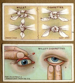 "darklynoon:  I thought that said ""how to extract an eye from a foreign body"" and I was excited."
