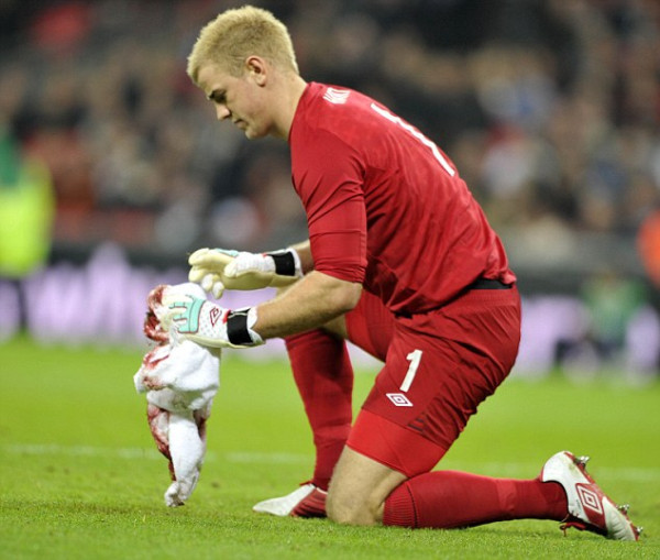 Joe Hart wiping the blood off after Smalling and Huntelaar's collision.