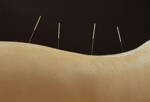 "Puncturing the Acupuncture Myth (via Science-Based Medicine) ""Alternative"" medicine is by definition medicine that has not been scientifically proven and has not been accepted into mainstream scientific medicine. The question I keep hearing is, ""But what about acupuncture? It's been proven to work, it's supported by lots of good research, more and more doctors are using it, and insurance companies even pay for it."" To start with, this ancient Chinese treatment is not so ancient and may not even be Chinese! From studying the earliest documents, Chinese scholar Paul Unschuld suspects the idea may have originated with the Greek Hippocrates of Cos and later spread to China. There's certainly no evidence that it's 3000 years old. The earliest Chinese medical texts, from the 3rd century BC, don't mention it. The earliest reference to ""needling"" is from 90 BC, but it refers to bloodletting and lancing abscesses with large needles or lancets. There is nothing in those documents to suggest anything like today's acupuncture. We have the archaeological evidence of needles from that era – they are large; the technology for manufacturing thin steel needles appropriate for acupuncture didn't exist until 400 years ago.  The earliest accounts of Chinese medicine reached the West in the 13th century: they didn't mention acupuncture at all. The first Westerner to write about acupuncture, Wilhelm Ten Rhijn, in 1680, didn't describe acupuncture as we know it today: he didn't mention specific points or ""qi;"" he spoke of large gold needles that were implanted deep into the skull or ""womb"" and left in place for 30 respirations. Acupuncture was tried off and on in Europe after that. It was first tried in America in 1826 as a possible means of resuscitating drowning victims. They couldn't get it to work and ""gave up in disgust."" I imagine sticking needles in soggy dead bodies was pretty disgusting. Through the early 20th century, no Western account of acupuncture referred to acupuncture points: needles were simply inserted near the point of pain. Qi was originally vapor arising from food, and meridians were channels or vessels. A Frenchman, Georges Soulie de Morant, was the first to use the term ""meridian"" and to equate qi with energy – in 1939. Auricular (ear) acupuncture was invented by a Frenchman in 1957. The Chinese government tried to ban acupuncture several times between 1822 and WWII, when the Chinese Nationalist government tried to suppress it. Mao revived it in the ""barefoot doctor"" campaign in the 1960s as a cheap way of providing care to the masses; he did not use it himself and he did not believe it worked. It was Mao's government that coined the term ""traditional Chinese medicine"" or TCM, to include acupuncture, herbal medicine, moxibustion, and other traditional practices.  (Mao's Barefoot Doctors Propaganda poster) … As acupuncture increased in popularity in the West, it declined in the East. In 1995, visiting American physicians were told only 15-20% of Chinese chose TCM, and it was usually used along with Western treatments after diagnosis by a Western-trained physician. Apparently some patients choose TCM because it is all they can afford: despite being a Communist country, China does not have universal health coverage. … Does acupuncture work? Which acupuncture, and what do you mean by work? There are various different Chinese systems, plus Japanese, Thai, Korean and Indian modalities, most of which have been invented over the last few decades. Whole body or limited to the scalp, hand, ear, foot, or cheek and chin. Deep or superficial. With electrified needles. With lasers. With dermal pad electrodes and no skin penetration. Acupuncture works, but placebos work too. Acupuncture has been shown to ""work"" to relieve pain, nausea, and other subjective symptoms, but it has never been shown to alter the natural history or course of any disease. It's mostly used for pain today, but early Chinese practitioners maintained that it was not for the treatment of manifest disease, was so subtle that it should only be employed at the very beginning of a disease process, and was only likely to work if the patient believed it would work. Now there's a bit of ancient wisdom! Studies have shown that acupuncture releases natural opioid pain relievers in the brain: endorphins. Veterinarians have pointed out that loading a horse into a trailer or throwing a stick for a dog also releases endorphins. Probably hitting yourself on the thumb with a hammer would release endorphins too, and it would take your mind off your headache. Psychologists can list plenty of other things that could explain the apparent response to acupuncture. Diverting attention from original symptoms to the sensation of needling, expectation, suggestion, mutual consensus and compliance demand, causality error, classic conditioning, reciprocal conditioning, operant conditioning, operator conditioning, reinforcement, group consensus, economic and emotional investment, social and political disaffection, social rewards for believing, variable course of disease, regression to the mean – there are many ways human psychology can fool us into thinking ineffective treatments are effective. Then there's the fact that all placebos are not equal – an elaborate system involving lying down, relaxing, and spending time with a caring authority can be expected to produce a much greater placebo effect than simply taking a sugar pill.  There are plenty of studies showing that acupuncture works for subjective symptoms like pain and nausea. But there are several things that throw serious doubt on their findings. The results are inconsistent, with some studies finding an effect and others not. The higher quality studies are less likely to find an effect. Most of the studies are done by believers in acupuncture. Many subjects would not volunteer for an acupuncture trial unless they had a bias towards believing it might work. … The biggest problem with acupuncture studies is finding an adequate placebo control. You're sticking needles in people. People notice that. Double blinding is impossible: you might be able to fool patients into thinking you've used a needle when you haven't, but there's no way to blind the person doing the needling. Two kinds of controls have been used: comparing acupuncture points to non-points, and using an ingenious needle in a sheath that appears to have penetrated the skin when it hasn't. In George Ulett's research, he found that applying an electrical current to the skin of the wrist – a kind of TENS (transcutaneous electrical nerve stimulation) treatment – worked just as well as inserting needles, and one point on the wrist worked for symptoms anywhere in the body. Guess what? It doesn't matter where you put the needle. It doesn't matter whether you use a needle at all. In the best controlled studies, only one thing mattered: whether the patients believed they were getting acupuncture. If they believed they got the real thing, they got better pain relief – whether they actually got acupuncture or not! If they got acupuncture but believed they didn't, it was less likely to work. If they didn't get it but believed they did, it was more likely to work. Acupuncturists can rationalize with great ingenuity. In a recent study using sham acupuncture as a control, both the sham placebo acupuncture and the true acupuncture worked equally well and were better than no treatment. The obvious conclusion was that acupuncture was no better than placebo. Their conclusion was that acupuncture worked and the placebo acupuncture worked too! One researcher decided it's not meaningful to use placebo controls in acupuncture research because any stimulation of the skin might be effective – which seems to me to pretty much destroy the whole rationale for acupuncture, but he didn't seem to notice that. If that's true, why not just caress or massage our patients instead of lying about imaginary qi and meridians? Considering the inconsistent research results, the implausibility of qi and meridians, and the many questions that remain, all the current evidence is compatible with this hypothesis: acupuncture is nothing more than a recipe for an elaborate placebo seasoned with a soupcon of counter-irritant. That is what R. Barker Bausell concluded in his book Snake Oil Science. The world's first professor of complementary medicine, Dr. Edzard Ernst, is more accepting of low-prior-plausibility evidence than some of us; but even he used the words ""tentative"" and ""might"" when he recently wrote, ""While there is tentative evidence that acupuncture might be effective for some forms of pain relief and nausea, it fails to deliver any medical benefit in any other situations and its underlying concepts are meaningless."""