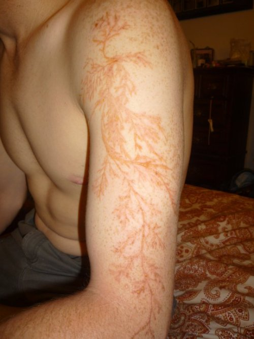 "This is what I would get a tattoo of (if I did not scar so easily and in a smaller pattern and not on my arm.) thedailywhat:  How About That of the Day: A ""lightning flower"" is a Lichtenberg Figure — or electric discharge pattern — that occurs on the skin of lightning strike victims, most likely as a result of small capillaries bursting from the intensity of the bolt's current. Also: Automatic winner of any barroom scar story battle. [reddit.]"