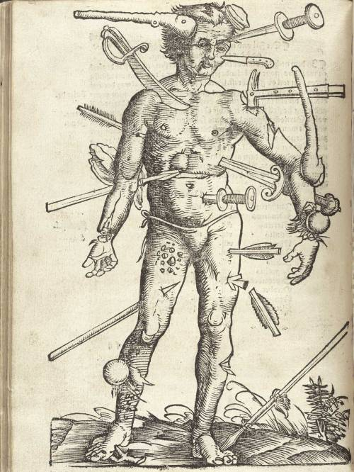 scarlettown:  The Wounded Man, from Hans von Gersdorff's Fieldbook of Surgery, 1517. Illustration by Hans Wechtlin