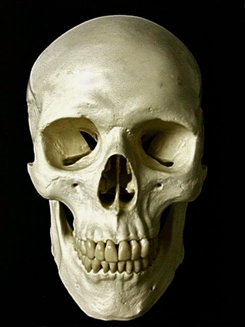 Skull - Anterior View Orbital surface: The space where the eyes would beFrontal bone: The anterior portion of the skull where the forehead is and makes up the ceiling of the orbital surface Supraorbital foramen: Tiny holes just above the entrance to the orbitals on the anterior surface of the skullLacrimal bone: The bone most anterior and medial in the orbital surfaceZygomatic bone: The cheekbone in this view and makes up the lateral surface of the orbital surfaceMaxilla bone: The upper region of the mouth ending just below the cheekbone and orbitals and makes up the floor of the orbital surfaceAnterior nasal spine: The small sharp project superior to the teeth of the maxilla just below where the base of the nose isMental foramen: Tiny holes on the anterior surface of the mandible just slightly lateral from the center of the bodyZygomatic process of the Maxilla: The process branching from the maxilla part of the cheekboneInfraorbital foramen: The tiny holes just inferior to the entrance of the orbitalsInferior orbital fissure: The inferior slit towards the posterior end of the orbital surfaceSuperior orbital fissure: The slits superior to the inferior orbital fissure in the orbital surfaceNasal cavity: The space posterior to where the nose would beNasolacrimal canal: The hole at the anterior and inferior aspect of the orbital surface by the lacrimal boneAlveolar crest of the maxilla: The gum line ridge superior to the teeth on the maxillaNasal bone: The small surface just superior to the nasal cavity on the anterior surface of the skull in this view inferior to the frontal boneMandible: The lower half of the mouth recognized as the jawMandibular ramus: The vertical portion of the mandible Mandibular angle: The corner where the mandibular ramus changes direction to head anteriorlyAlveolar crest of the mandible: The gum line ridge of the mandible Mandibular condyle: The more posterior and superior end of the mandibular ramus that articulates with the mandibular foss of the temporal boneCoronoid process of the mandible: The short process more anterior to the mandibular condyle Ethmoid bone: Can be seen in this view inside the orbital surface just posterior to the lacrimal boneVomer: The plate in the nasal cavity traveling posterior from the anterior nasal spinePerpendicular plate: The plate posterior and perpendicular to the vomer in the nasal cavityInferior nasal concha: The more inferior cleft on the inside of to walls of the nasal cavity Middle nasal concha: The cleft superior to the inferior nasal concha Sphenoid bone: Can be recognized by its greater wing on the posterior aspect of the orbital surface separating the inferior and superior orbital fissures with the lesser wing also in the posterior end superior to the superior orbital fissure