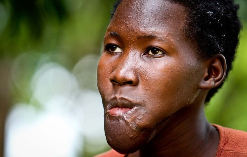 kony12:  Women like us were always given guns and forced to go loot food from the South Sudanese. It was not easy as we always had to fight for food. If you don't take back food to the camp, you were killed immediately. Many died in that process including my close family and friends. The life in the bush was not easy during the six years I spent with the LRA. We were forced to do certain things which are imaginable. The year 2003 was the defining point in my life in the bush. There was heavy fighting between the rebels and UDPF in a place called Koc. In me, I knew this was the time to free myself. I knew how dangerous my decision was but I'd to make it anyway. There was never an easy decision in the bush. I ran for days and nights. My lip was getting worse before I collapsed one day by the road ride. A Good Samaritan picked me up and that's how I ended up in Uganda. I was then flown to Italy for surgery not so long after arriving in Gulu.As the fighting raged on, I was shot on my lower lips by a bullet. I cannot tell from which side the bullet came from. I was bleeding so much but I had to put a cloth on my lip and started running. My life was so hard during the insurgency. Now that things are calm, it's much better but I still have to go through a lot of hardship just to survive. Right now, I have nothing.