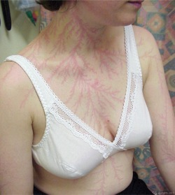 "A Body Struck by Lightning  Lichtenberg figures (aka ""lightning flowers"") appear on the skin of lightning strike victims. These are reddish, fern-like patterns that may persist for hours or days. They are also a useful indicator for medical examiners when determining the cause of death. Lichtenberg figures appearing on people are sometimes called lightning flowers, and they are thought to be caused by the rupture of small capillaries under the skin due to the passage of the lightning current or the shock wave from the lightning discharge as it flashes over the skin."