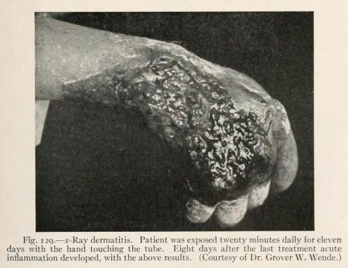 biomedicalephemera:  X-Ray Dermatitis Not to say that people didn't realize that radiation could be dangerous, it just wasn't widely thought to be all that dangerous, and it wasn't really publicized how easily it could cause injury. This patient is showing moist desquamation, which is fairly common in incidents of acute mid-level radiation exposure. Cell damage is pretty deep in injuries like this, and there's usually some degree of radiation fibrosis when the site heals. A Treatise on Diseases of the Skin for Advanced Students and Practitioners. Henry W. Stelwagon, 1923.