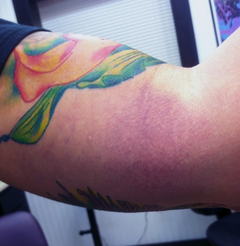 This is how my arm looks today from pushing hard on it Wed to stretch the skin to do that self-tattoo.   I might have hurt myself just a little.
