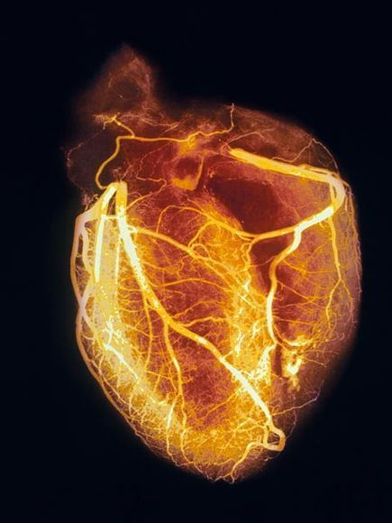 Angiogram of Healthy Heart Photograph by SPL/Photo Researchers, Inc. The picture of health, an angiogram of a human heart shows blood vessels in sharp detail. To take an angiogram, or arteriogram x-ray, doctors must first inject the patient with a special opaque dye that allows a clear view of the heart's blood vessels, including the large left and right coronary arteries. Narrowed arteries indicate the presence of coronary artery disease. Blockages of either of the coronary arteries could lead to a heart attack. Such x-rays help doctors determine a course of treatment.