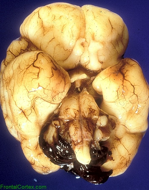Intraventricular hemorrhage with subarachnoid extension, ventral surface of brain.Ventricular blood emanating through foramina of Lushcke and Magendie to cover the posterior cerebellum at the base of the brain. As described initially by Thomas Willis (of circle of Willis fame), intraventricular hemorrhage is often first encountered by the pathologist as grummous blood encircling the base of the brain. Source
