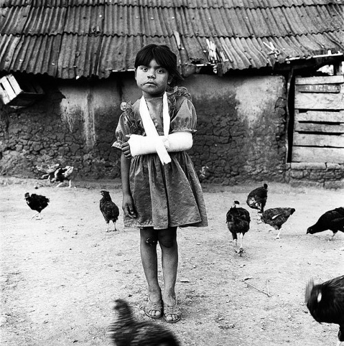 systemethics:  Girl with a broken arm and chickens by mexadrian on Flickr. Via Flickr: From the series Huicholes. Pochotitan, Nayarit, México.