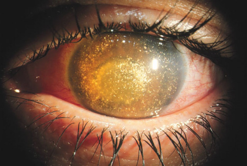 Anterior chamber cholesterolosis. The most gorgeous way to go painfully blind!