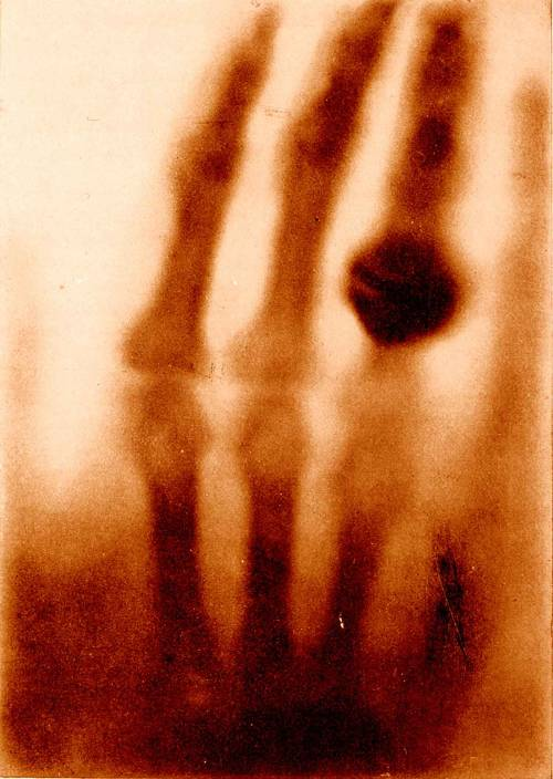 theoddmentemporium:  The hand of Mrs. Wilhelm Roentgen: the first X-ray image, 1895 In Otto Glasser, Wilhelm Conrad Röntgen and the early history of the Roentgen rays. London, 1933. National Library of Medicine. The announcement of Roentgen's discovery, illustrated with an X-ray photograph of his wife's hand, was hailed as one of mankind's greatest technological accomplishments, an invention that would revolutionize every aspect of human existence.