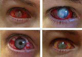 now you know the consequence of bad usage of contact lenses :)