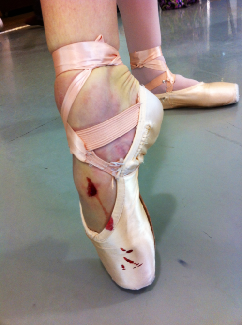 Ballet is GNARLY.