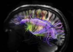infoneer-pulse:  Spectacular Brain Images Reveal Surprisingly Simple Structure  Stunning new visuals of the brain reveal a deceptively simple pattern of organization in the wiring of this complex organ. Instead of nerve fibers travelling willy-nilly through the brain like spaghetti, as some imaging has suggested, the new portraits reveal two-dimensional sheets of parallel fibers crisscrossing other sheets at right angles in a gridlike structure that folds and contorts with the convolutions of the brain. This same pattern appeared in the brains of humans, rhesus monkeys, owl monkeys, marmosets and galagos, researchers report today (March 29) in the journal Science.  » via Live Science