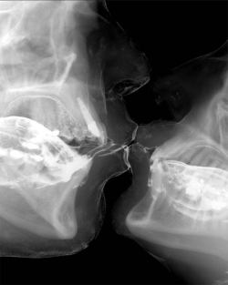 geneticist:  An X-ray of two lovers kissing  (via)