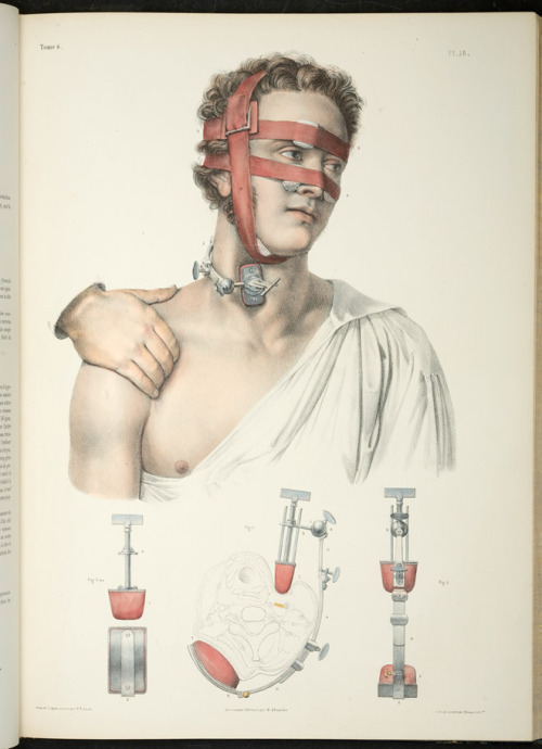 Complete Study of Human Anatomy, 1831 – 54 Jean-Baptiste Marc Bourgery, illustrations by Nicolas-Henri Jacob The authors of this book insisted on depicting their models as idealized and beautiful. In the image above, a fastidious combination of straps and bandages compresses the patient's facial arteries, and three different angles of an instrument made to exert pressure on the carotid are shown.