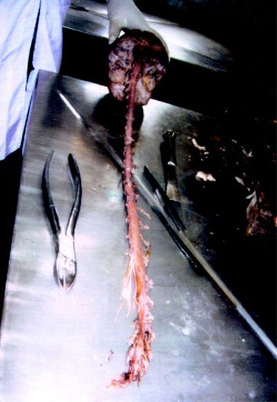 forensicsandpathology:  Intact brain, spinal cord, caudaequina with its meninges and nerve roots coming out.
