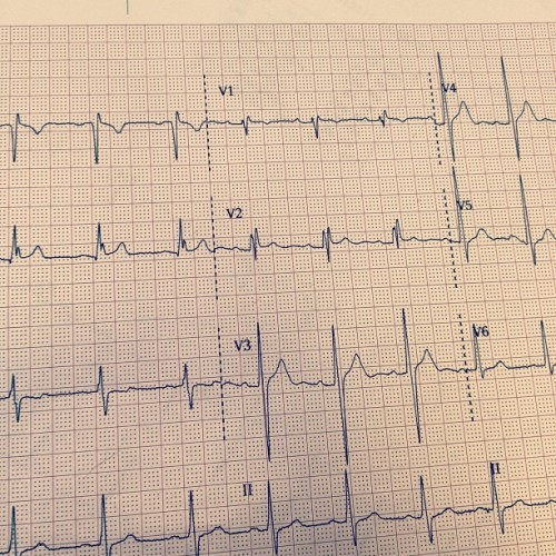 jdavidcox:  Patient presents with a right bundle branch block, slight ST segment depression #EKG (Taken with instagram)