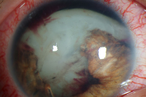 Traumatic cataract and iris trauma