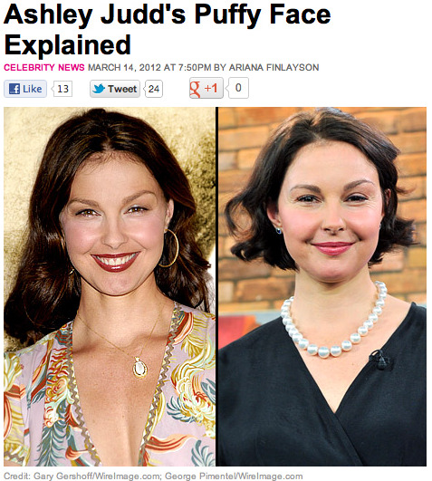 "Ashley Judd, writing on the site, fights back at those in the media who speculated on her ""puffy"" appearance, calling the frenzy a misogynistic assault on all women.Why even stoop to their level? Ashley:  I choose to address it because the conversation was pointedly nasty, gendered, and misogynistic and embodies what all girls and women in our culture, to a greater or lesser degree, endure every day, in ways both outrageous and subtle. The assault on our body image, the hypersexualization of girls and women and subsequent degradation of our sexuality as we walk through the decades, and the general incessant objectification is what this conversation allegedly about my face is really about.  And she's only getting started! Yea girl. Read Ashley Judd Slaps Media on The Daily Beast."