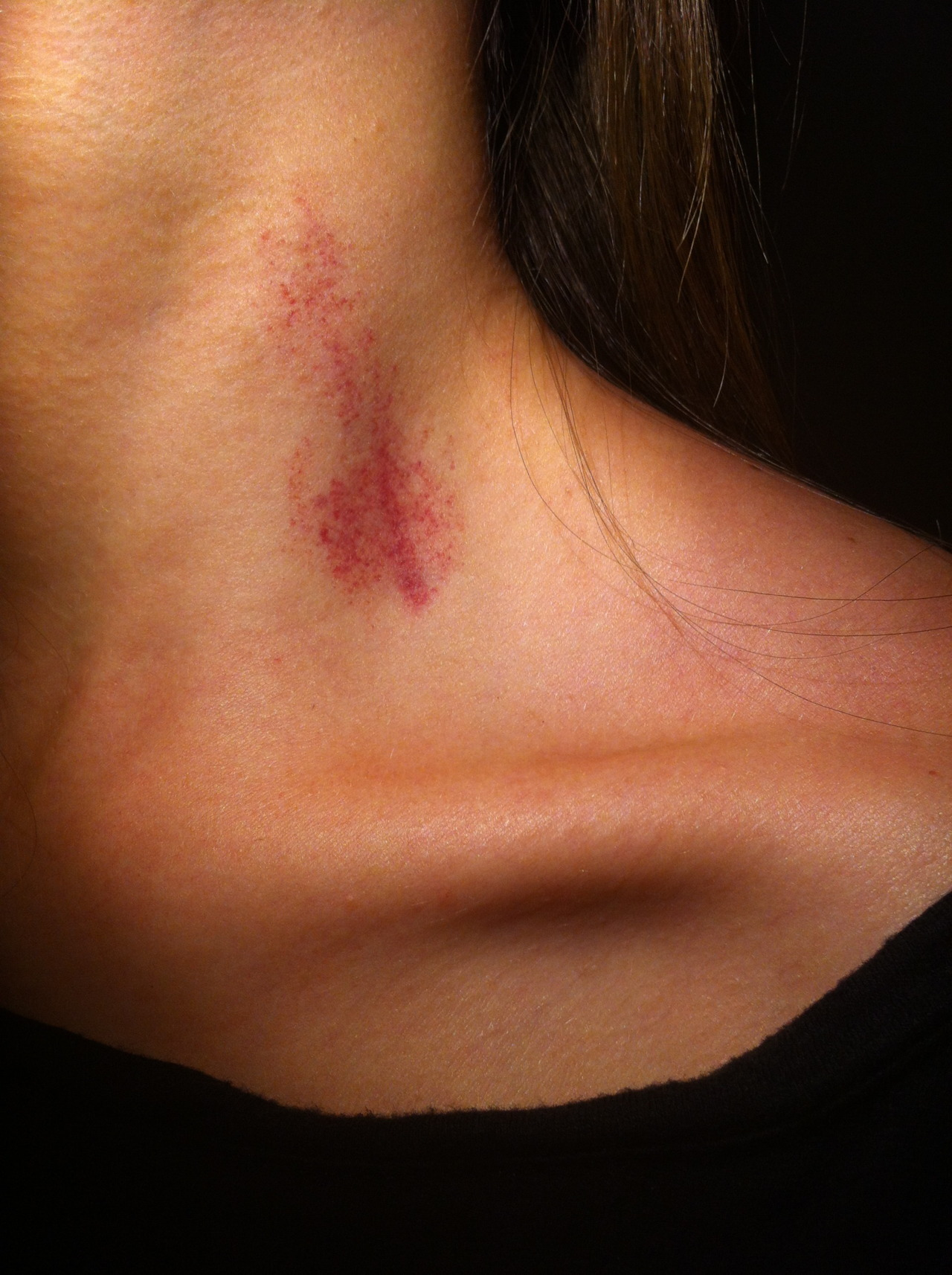 iknowuknowweknow:  If my boyfriend does me a hickey ill fkin beat him up, it looks so gross