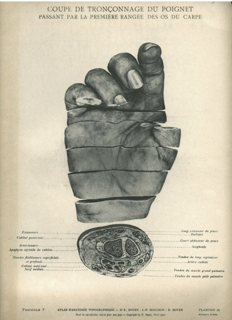 Atlas of Topographic Anatomy, 1911 Eugène-Louis Doyen with J.-P. Bouchon and R. Doyen heliotypes by E. Le Deley Hidden Treasures