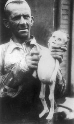 failfail9:  Starved infant in Warsaw ghetto. might be a repost.