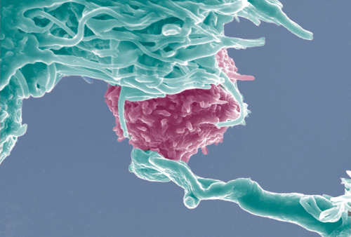 "fuckyeahmolecularbiology:  T cells are amazing white blood cells that play a crucial role in cell-mediated immunity. They can be divided into several categories - notably helper, cytotoxic, memory, regulatory, and natural killer (NK) - and their primary role within the immune system is to search out and destroy both invading pathogens and abnormal cells. Helper T cells also help to regulate the immune response. The image above features a cytotoxic T cell, which destroy abnormal cells (most notably virally infected cells and tumour cells) and are also implicated in organ transplant rejection. Dendritic cells, pictured cyan blue in the photo, constitutively express high levels of both class I and class II MCH molecules - the type of receptor that cytotoxic T cells recognise - making them extraordinary potent activators capable of stimulating even ""naive"" T cells that have never encountered an antigen."
