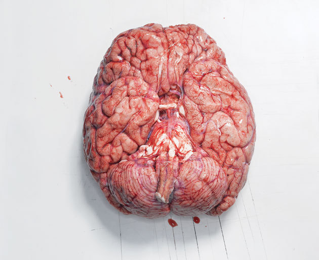 "MY GOD ISN'T THIS GORGEOUS!?  http://www.wired.com/medtech/health/magazine/17-04/ff_brainatlas?currentPage=all  ""When the project is completed in 2012, at an expected cost of $55 million, its data sets will list the roughly 20,000 genes that, switched on in the exact right place at the exact right time, give rise to this self-aware tangle of neurons. ""  MY GOD THIS IS SO EXCITING. Gene by gene…Four letters that create the organic instrument in which we perceive and interpret stimuli…what lets us live, be sad, be happy, what lets us love immensely, and hate terribly —— or does it!?  Perhaps within this decoding of the blueprints of the human brain, we may find evidence toward Dualism!? Possibilities leading to a Soul perhaps?   HUGE NEXT STEP IN THE FREAKING NEURO-SOCIETY.  If we can find the chemical organic blueprint of creation, could we possibly re-invent the human being?……………………………………………………………… Then again we don't want THIS happening…  I have faith that in reality our scientists won't make something stupid like this son-of-a-bitch. XD"
