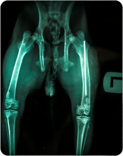OneHundredFive.  I have a metal pin in my femur bone. (Bunny Xrays)