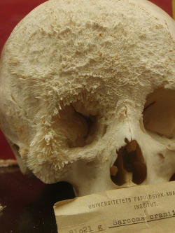 durianseeds: Bone cancer on a human skull.  whoa