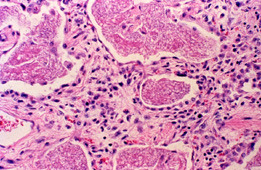 usmlepathslides:  Histologic section of lung showing foamy alveolar infiltrate of Pneumocystis carinii pneumonia:MC AIDS-defining opportunistic infection. Occurs with CD4 T helper cell count is under 200 cells/µL. Rx with trimethoprim/sulfamethoxazole.