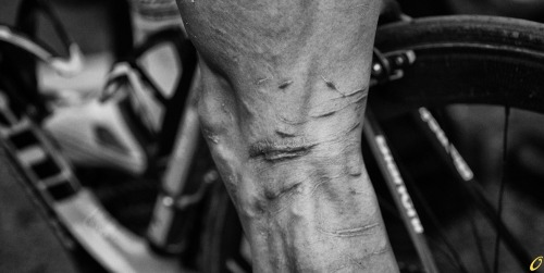Johnny Hoogerland. Respect. cadenced:  Johnny Hoogerland's legs still scarred from his battle with barbed wire at last year's Tour de France. Photo was taken by Veeral Patel and appears in Cycling Tips' coverage of this year's Amstel Gold.