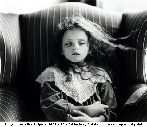 startyelling:  sally mann- black eye this lady took a bunch of pictures of kids. they're weird but awesome.