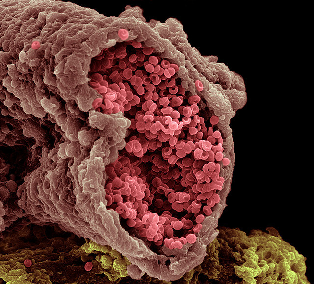 heythereuniverse:  Artery with red blood cells.