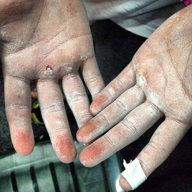 #climbing #hands #iyaz! #rockantics  (Taken with instagram)