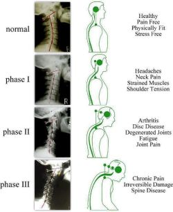 How does your neck look? Better yet…how does your neck feel?  Let us help you if you are in pain at Allegheny Medical & Wellness Associates