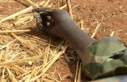 #War +18 A hand of a dead member of the #Sudan People's Liberation Army (SPLA) lies on the ground during the visit al-Bashir (not seen) in Heglig
