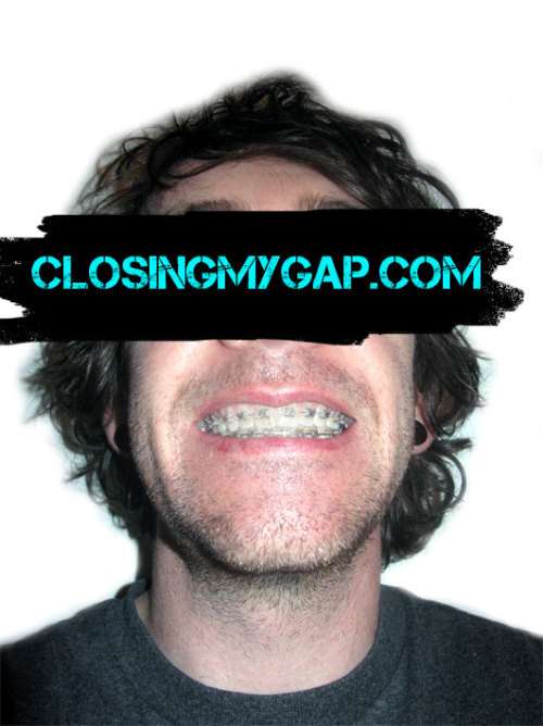 41 weeks with braces! http://closingmygap.com/adultwithbraces/41-weeks-with-braces/ Time for a haircut too