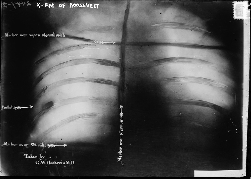 smithsonianmag:    Theodore Roosevelt Was Shot in the Chest During a Speech and Kept Reading…Like a Boss  Roosevelt spoke for more than an hour. Then he was rushed to the Johnston Emergency Hospital, where six surgeons prepared him on an operating table. Roosevelt insisted they were taking the wound, between the collar bone and the lower rib, too seriously.  Photo: An X-ray of Roosevelt's chest shows how close the bullet (embedded in rib on left) came to piercing his lung. Courtesy of the Library of Congress Ed note: We already knew Roosevelt was awesome but this just pushes him over the top.