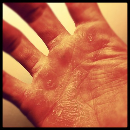 Time to shave my hands again. Oh the joys of being a flying trapeze catcher.  (Taken with instagram)