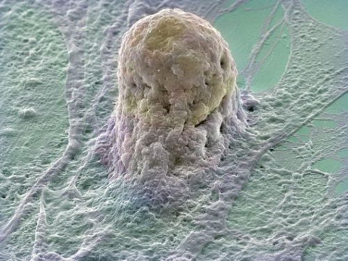 A stem cell enhanced by an electron micrograph.